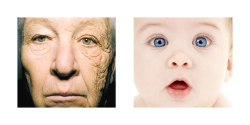 Comparison of sun damaged skin and baby skin